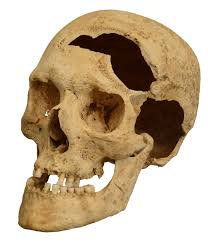 Skull Viewer File Skull Damaged By A Sword Jpg Wikimedia Commons