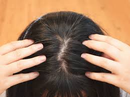 can gray hair turn black again how to get rid of grey hair naturally i got rid of grey hair