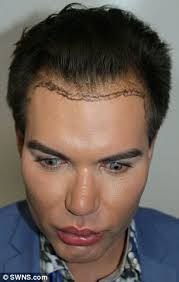 paddy mcguinness hair implants surgery addict who s spent 10 years turning himself into a real