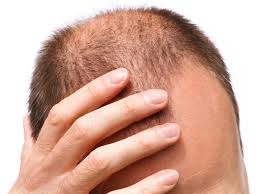 12 best home remedies for baldness organic facts