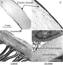 heart valve tissue engineering circulation research