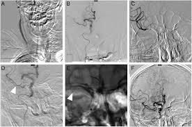 successful recanalization for acute ischemic stroke via the