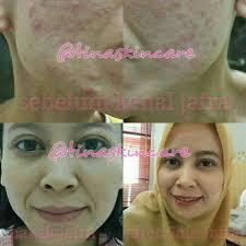 Serum Wajah Jafra go follow tinaskincare tinaskincare atasi masalah kulit wajah