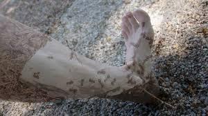muskelschwäche beine ameisenkribbeln ameisenlaufen kribbeln in armen oder beinen