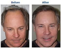 hair plugs for men hair grafting hair transplantation hair regrowth in allahabad