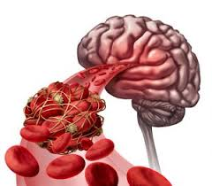 What Causes Blindness In Humans What Causes Blood Clots In The Brain
