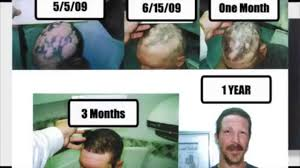 Stem Cells Hair Loss Stem Cell Hair Transplant Youtube