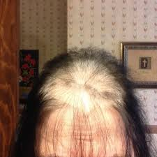 wen hair care lawsuit om hair