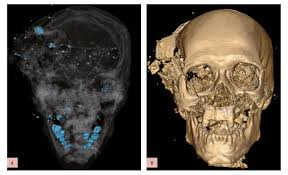 advances in forensic imaging bring new opportunities for radiology