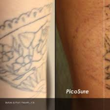laser tattoo removal affordable tattoo removal melbourne