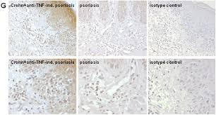 anti tnf antibody induced psoriasiform skin lesions in patients