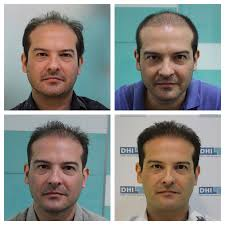 dhi hair transplant reviews dhi philippines direct hair implantation hair loss clinic in
