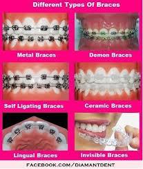 Nerdy Kid With Braces Meme - 168 best braces images on pinterest braces orthodontics and