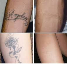 laser tattoo removal the venue salon
