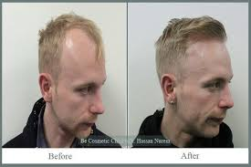 sting hair transplant hair transplant pictures be cosmetic