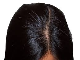 Biotin African American Hair Growth Types Of Hair Loss Hairbotics Hair Loss Solutions Manassas Va