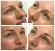 Eyebrow Threading Greenville Sc Eyebrow Microblading On A Fair Client This Will Fad By 50 Once