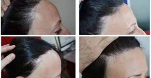 images of hair hair restoration treatments for all types of hair loss