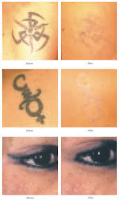 botox laser hair removal mole removal fillers in kent u0026 uk