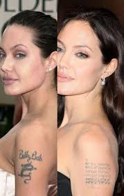 celebrity tattoo removal before and after temporary tattoo blog