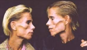 tragic celebrity deaths famous anorexic identical twins die in house fire following prophecy