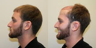 hair plugs for men dr brett bolton s latest hair transplant reviews news and