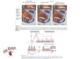 a immune complex deposition in subendothelial b anti glomerular