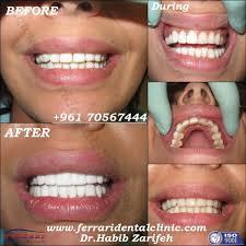 teeth whitening hollywood smile lebanon blog and reviews veneers
