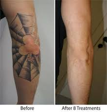 before and after tattoo removal tattoo design ideas