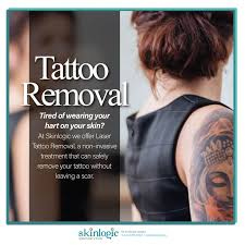 best 25 tattoo removal scars ideas on pinterest tattoo removal