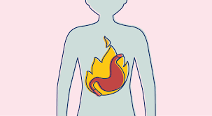 heartburn the role of diet and antacids