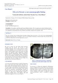 pilonidal cyst ultrasound oil cyst of breast a rare mammographic finding pdf download