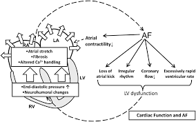 Heart Anatomy And Function Atrial Fibrillation Pathophysiology Circulation