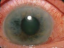 Symtoms Of Blindness Glaucoma Wikipedia