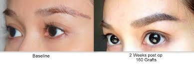 hair transplant in the philppines cost eyebrow transplantasian hair restoration center