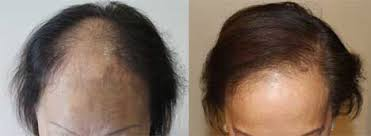 hair transplant costs in the philippines women hair loss hair transplant manila philippines by manzanares