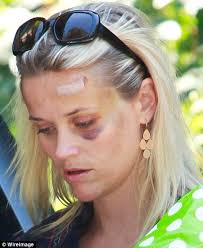 haircuts to hide forehead wrinkles reese witherspoon reveals road accident prompted new haircut