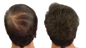 Thin Hair Extensions Before And After by Amazon Com Cuvva Hair Fibers Hair Loss Concealer For Thinning