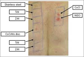 titanium allergy testing influence of surface coating on metal ion release evaluation in
