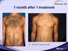 men shaved pubic hair image wholesale mens shaving hair beard trimmer female hairclipper pubic