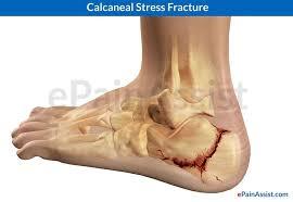 Os Calcaneus Foot Bones Diagram 3 4 Medial U0026 Posterior View Calcaneus
