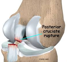 Anatomy Of Knee Injuries Posterior Cruciate Ligament Pcl Injury Houston Methodist