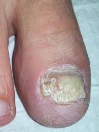 most effective laser nail fungus treatment nail fungus cure denver