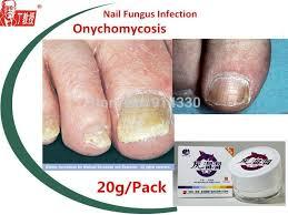 2 packs nail fungus treatment onychomycosis paronychia toe nail
