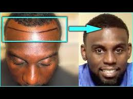 tyga hair transplant tyga hair transpla br iframe title youtube video player width