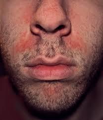 Candida And Hair Loss Seborrhoeic Dermatitis Wikipedia