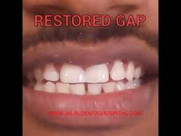 goody bands for teeth treatment for gap in teeth jalal dental clinic in chennai jalal