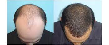 fut hong kong hair transplant hair restoration services hair restoration services in india