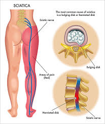 cialis lower back leg pain no prescription required