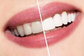 10 natural ways to whiten your teeth wellnessdose